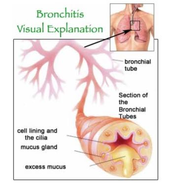 Relieve Your Bronchitis Cure